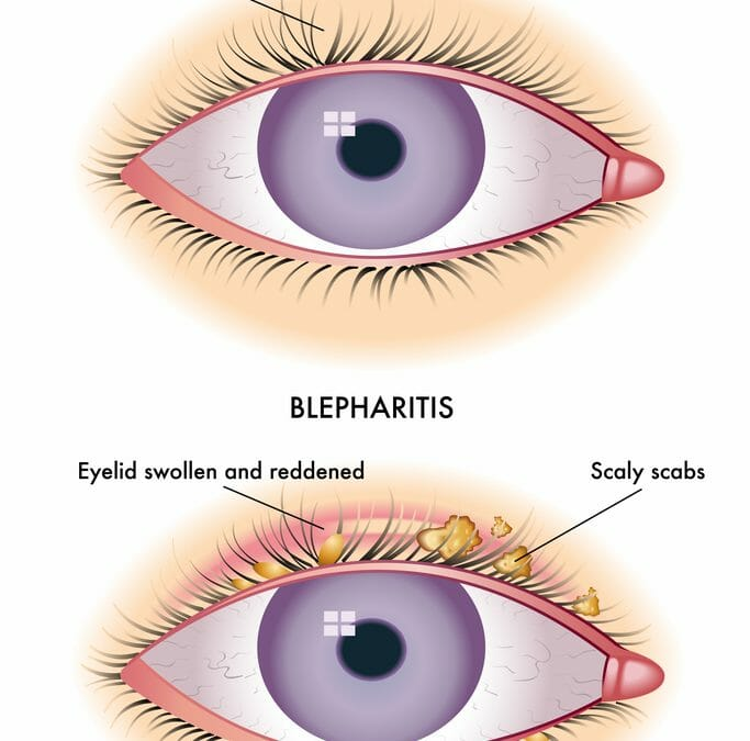 Blepharitis and Chalazion:  Finding Relief for Dry, Painful Eyes