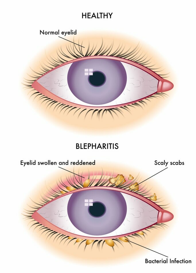 Blepharitis Crusty Eyes Diagram