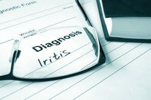 Iritis diagnosis
