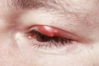 treating a chalazion
