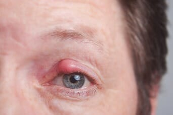 Chalazion Treatment, Causes, & Symptoms