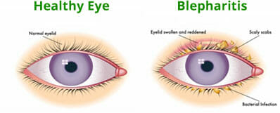 eye inflammation steroid drops