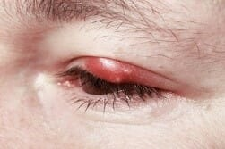 recurring chalazion can have ill effects