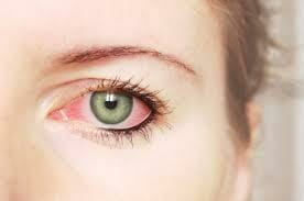 red eye irritation affects many