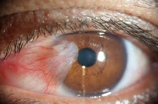 Effective Dry Eye Treatment for Pinguecula/Pterygium -Surfer's Eye With TheraLife