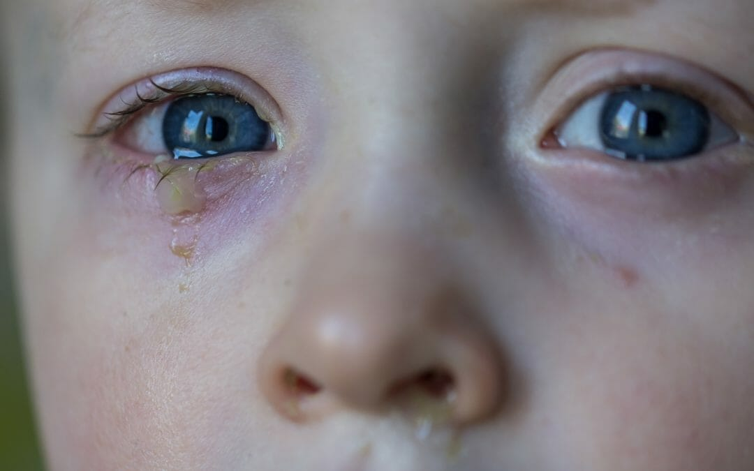 When Should I Take My Baby to the Doctor for Eye Discharge?